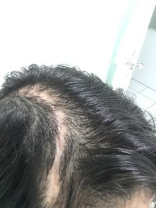Hair growing back after surgery